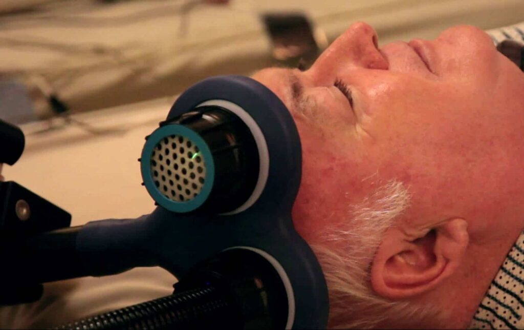 Transcarnial Magnetic Stimulation