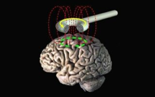 The workings of Repetitive transcranial magnetic stimulation (rTMS)